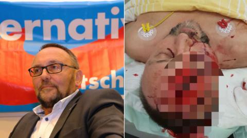 Lider AFD bătut bestial de extremişti de stânga la Bremen