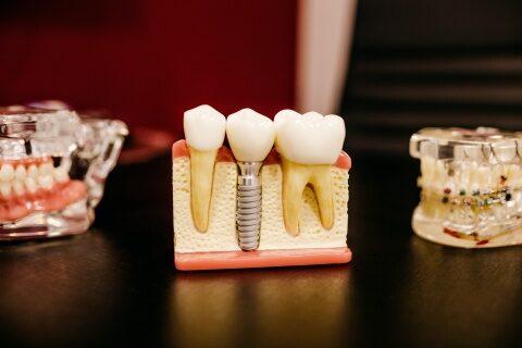 Extracția dentară: avem sau nu nevoie de un implant dentar?